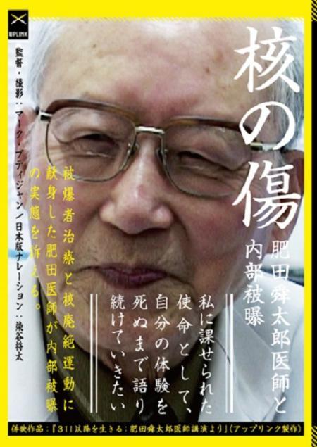 flyer_kakunokizu.jpg