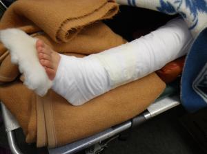 下腿両骨骨折固定