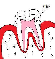 歯断面図(虫歯 かいかく