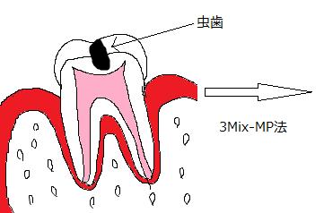 歯断面図(虫歯)2