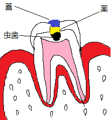 歯断面図(虫歯 kusuri