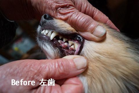 Before 左歯