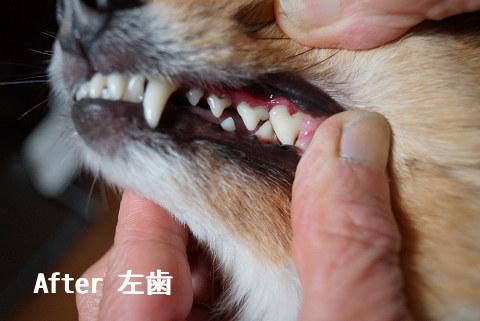 After 左歯