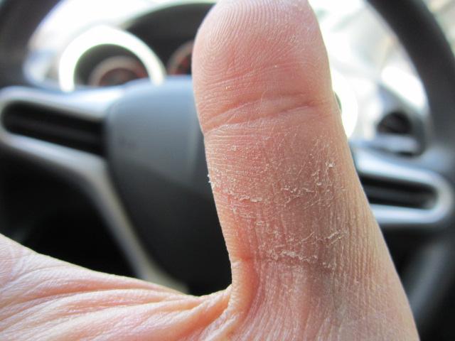 セイゴちゃんに痛めつけられたハネハネ星人の親指(笑)