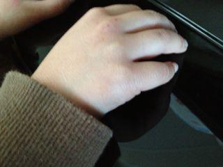 美和ちゃんの手