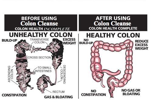 OC-unhealthyhealthyColon.jpg