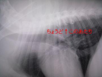 背骨の変化1