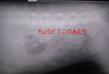 背骨の変化2