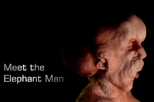 meet the elephant man