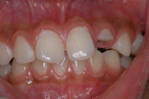前歯が折れてしまいました!