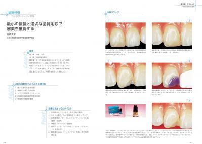 MIコンセプトに基づく審美歯科治療