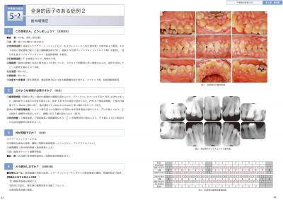 歯周治療へのアプローチ1
