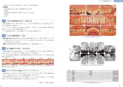 歯周治療へのアプローチ2
