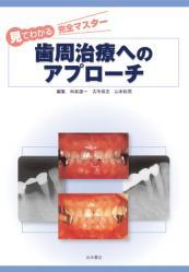 歯周治療へのアプローチ