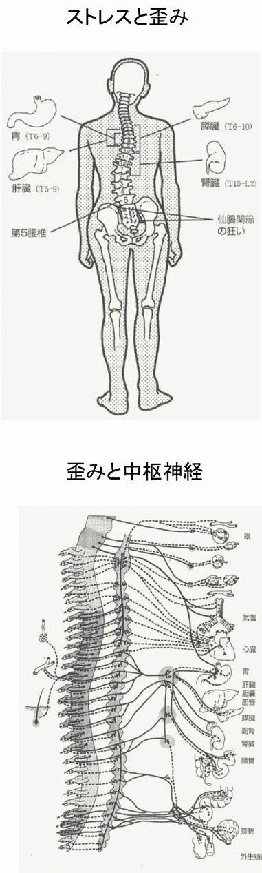 脊柱の歪み