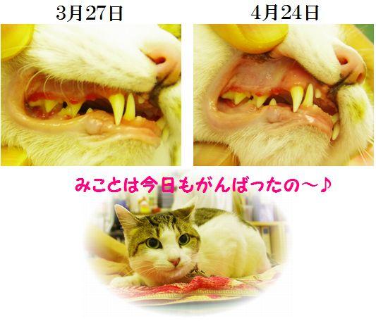 歯肉炎経過・・