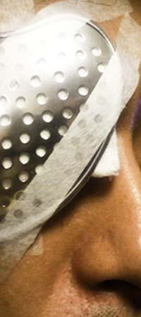 18 リアル眼帯