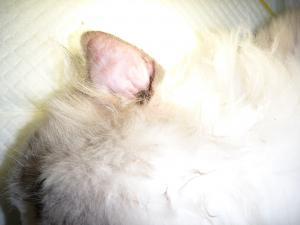 耳血腫 1