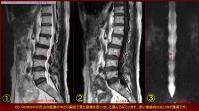 脊髄腫瘍の治療方向20110927-3a