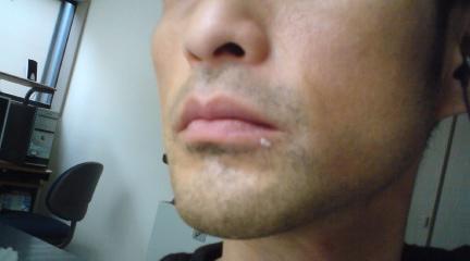 My口唇ヘルペス02