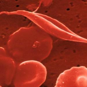 鎌状赤血球